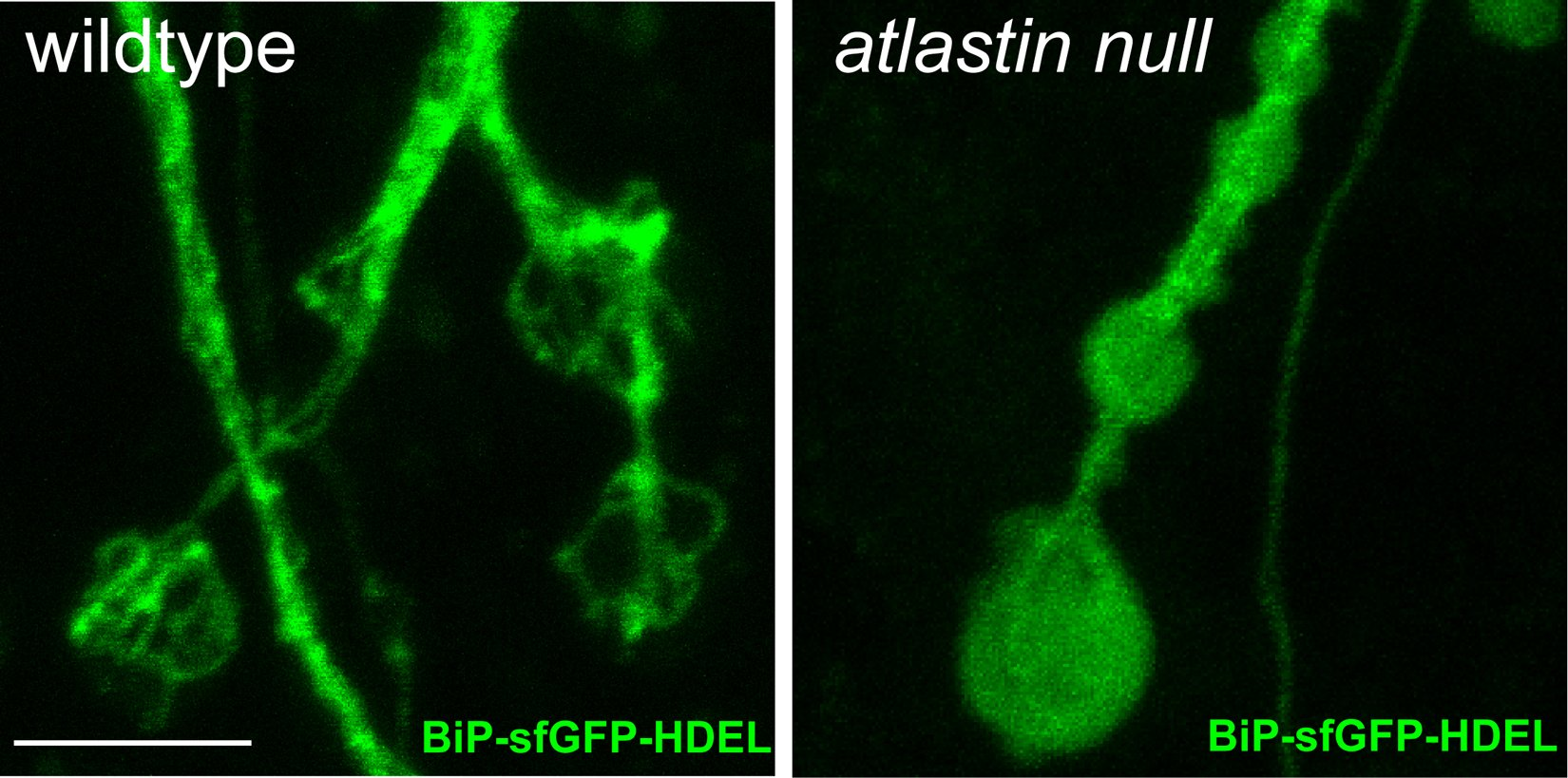 Under normal conditions, the endoplasmic reticulum (ER) in the neuron's synapse forms a basket-like shape (left). In cells that lacked the protein atlastin, an undifferentiated mass of ER material (right) forms in place of the basket-like structure. (Image courtesy of J. Faust/Rice University)