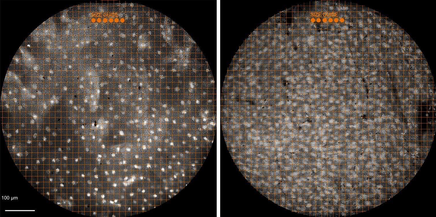 In these images from Rice's high-resolution microendoscope (HRME), the white spots are cell nuclei, which are irregularly shaped and enlarged in cancerous tumors (right) as compared with healthy tissue (left). (Credit: Richards-Kortum Lab/Rice University)