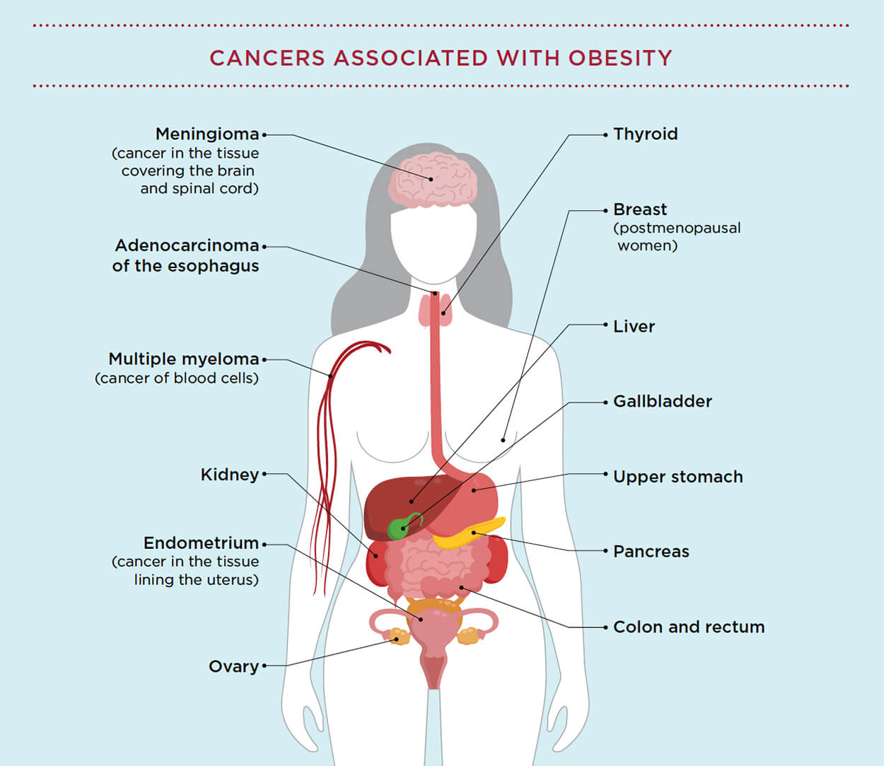 The Centers for Disease Control and Prevention identified 13 cancers associated with obesity.