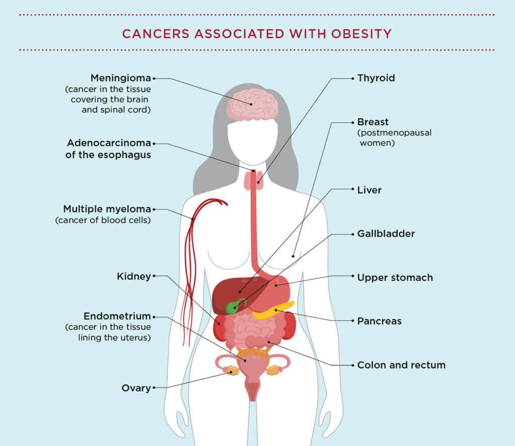 CancerAssociatedWithObesity