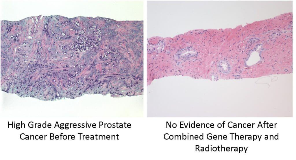 Dec 2015 JRO - Gene Therapy prostate cancer image[1]