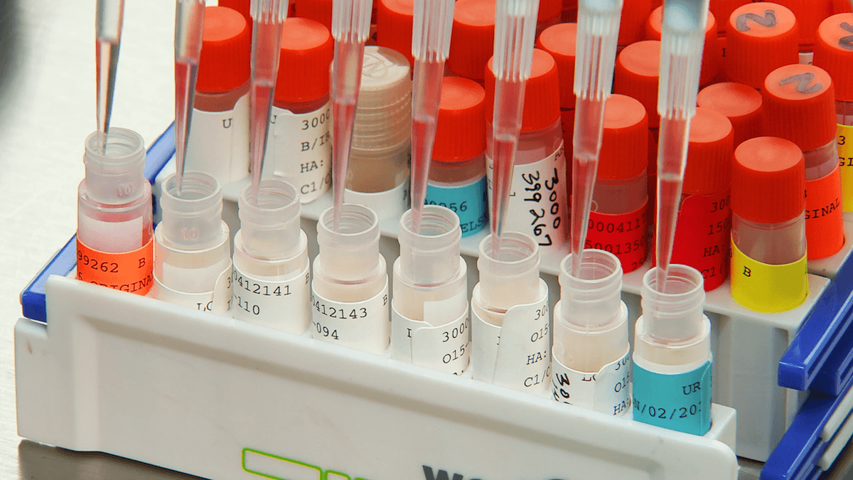 The Centers for Disease Control and Prevention compares the genetic sequences of vaccine viruses with those of circulating viruses. (Credit: CDC/ Emily Cramer)