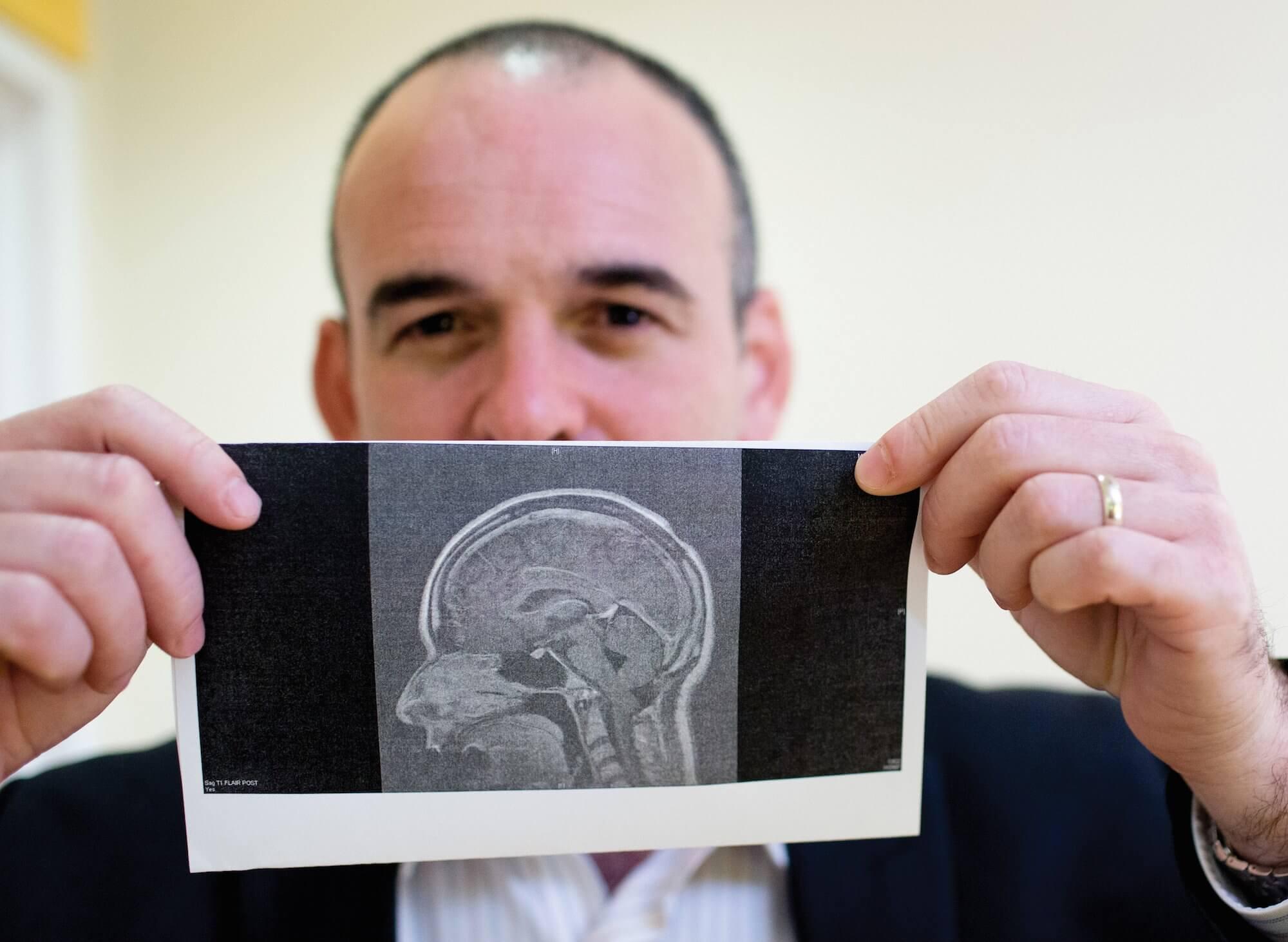 David Sandberg, M.D., holds a printout of Martinez's MRI taken prior to her surgery this summer.