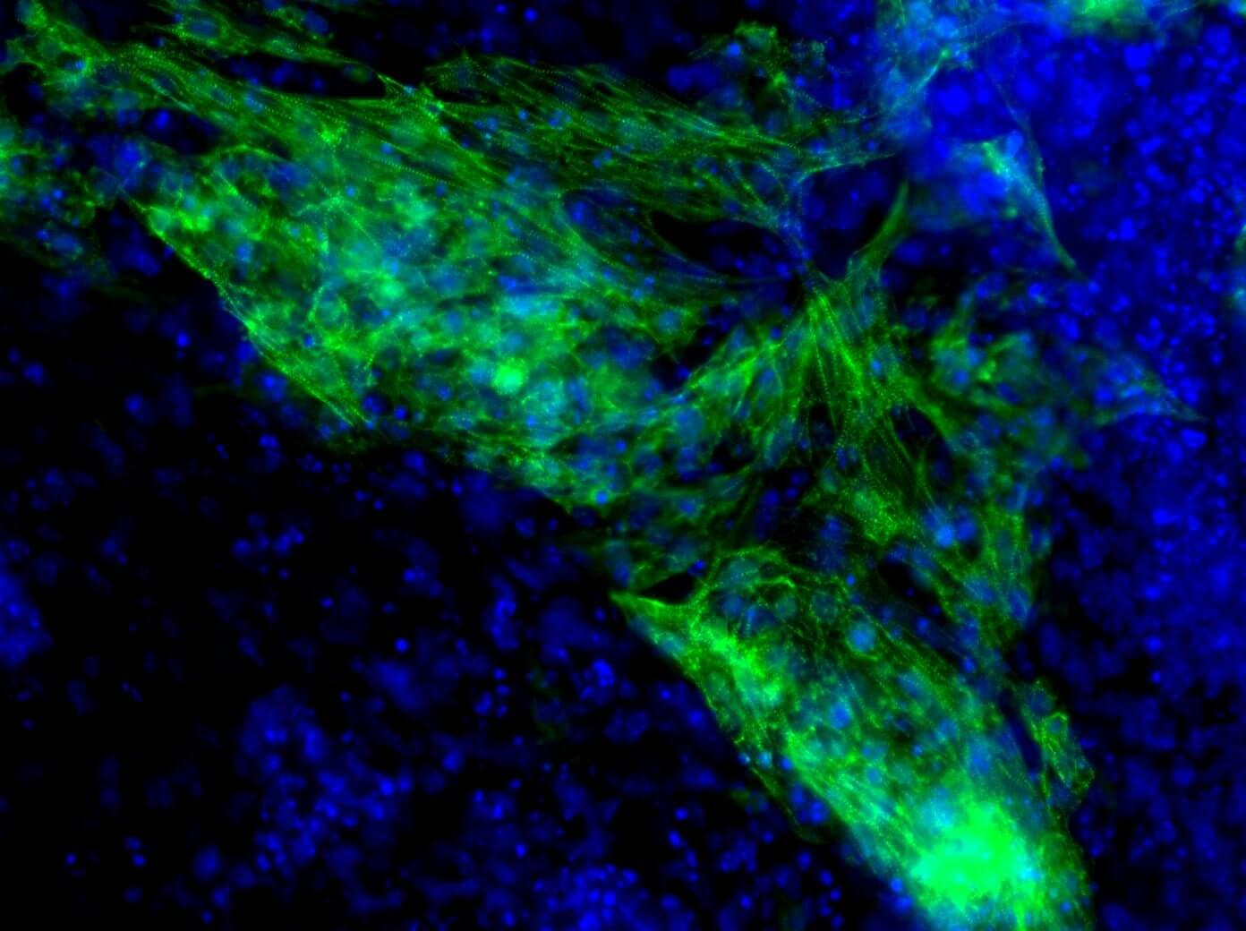 MicroRNA-induced heart muscle cell formation.
