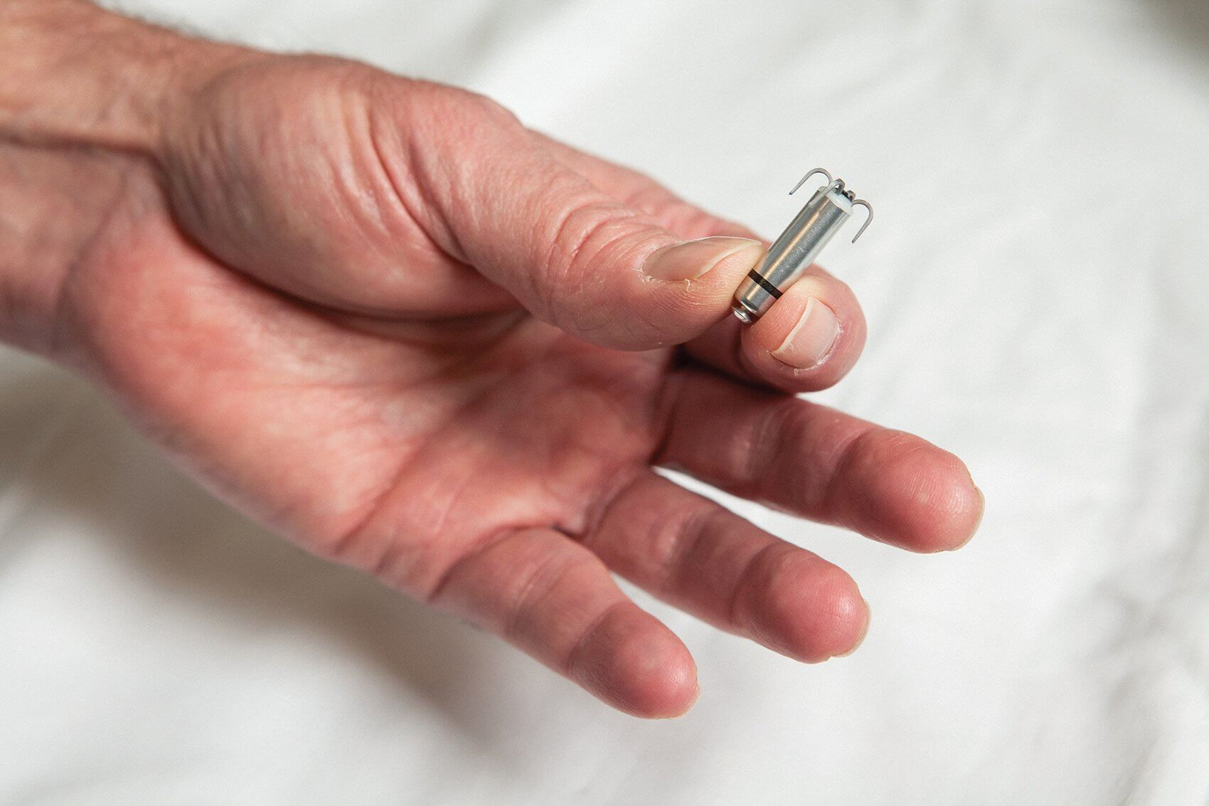 Less than one-tenth the size of a conventional pacemaker, the Micra is delivered directly into the heart through a catheter inserted in the femoral vein.