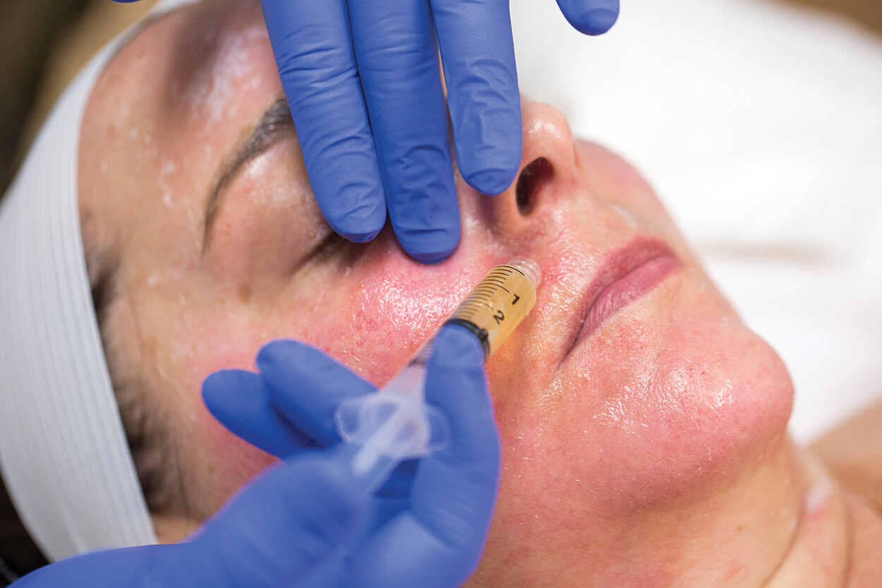 Step 4: Platelet rich plasma (PRP) is spread onto the face and a microneedling machine is used to pierce the skin and inject PRP to help boost collagen production.