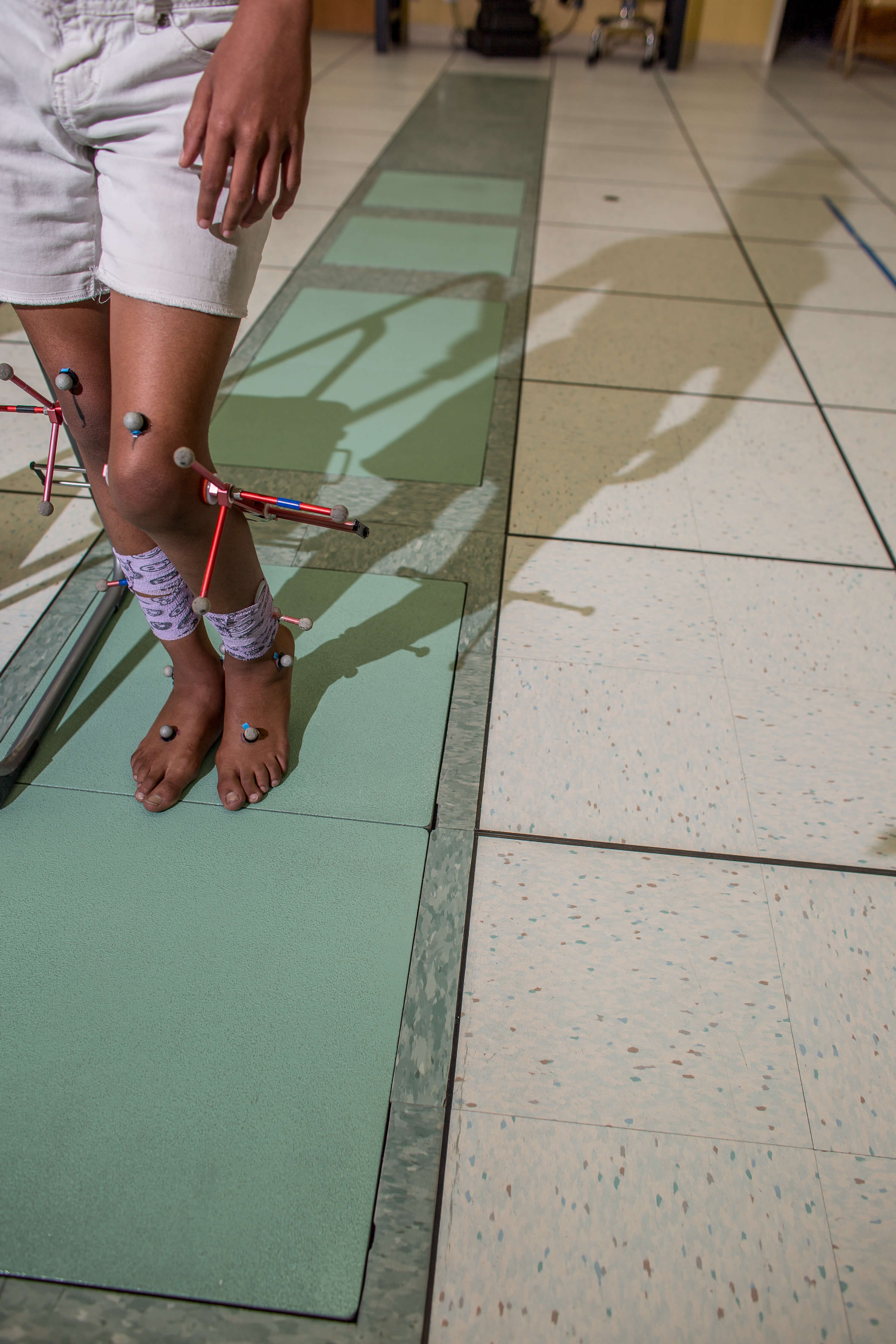 Location markers on the legs of Madilyn Jenkins, 9½, will turn her movements into animation during a motion analysis at Shriners Houston on May 6, 2019. (Photo by Nick de la Torre)