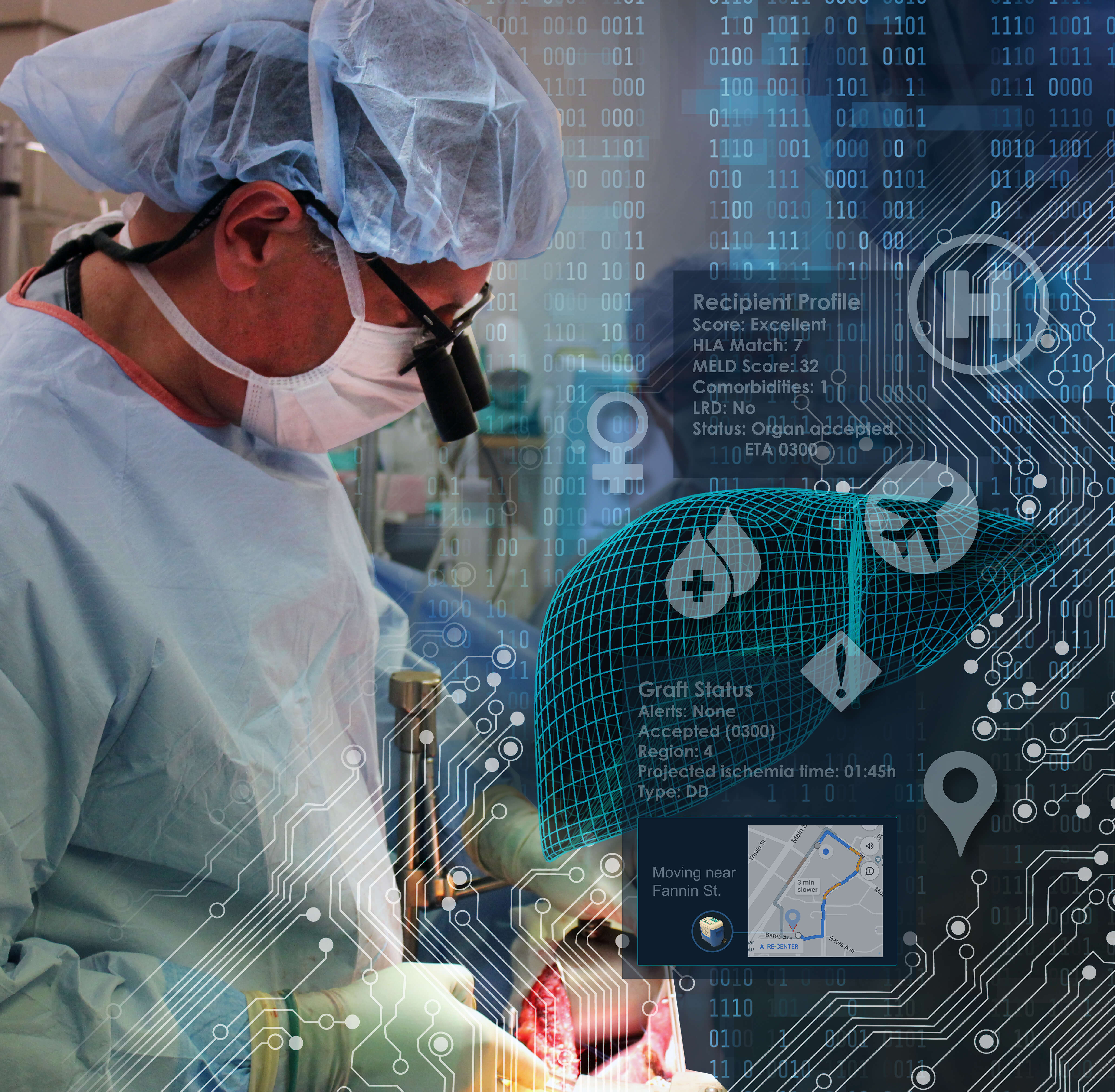 Doctors in the Texas Medical Center are looking for ways to improve organ transplantation outcomes through the use of artificial intelligence. Image by Scott Holmes, CMI.