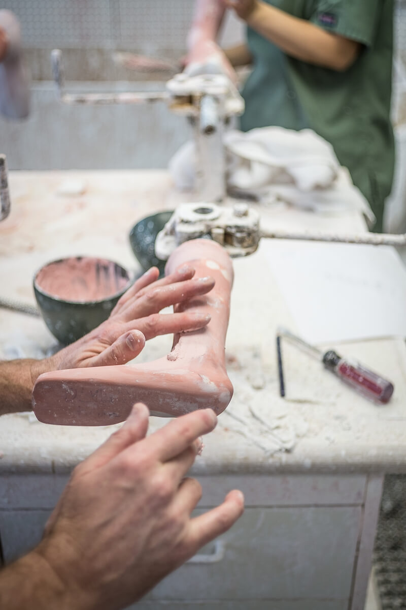 An orthotist/prosthetist at Shriners Hospitals for Children - Houston, a pediatric orthopedic hospital that is also a research and teaching center, smooths a mold of a patient's limb before creating a brace.