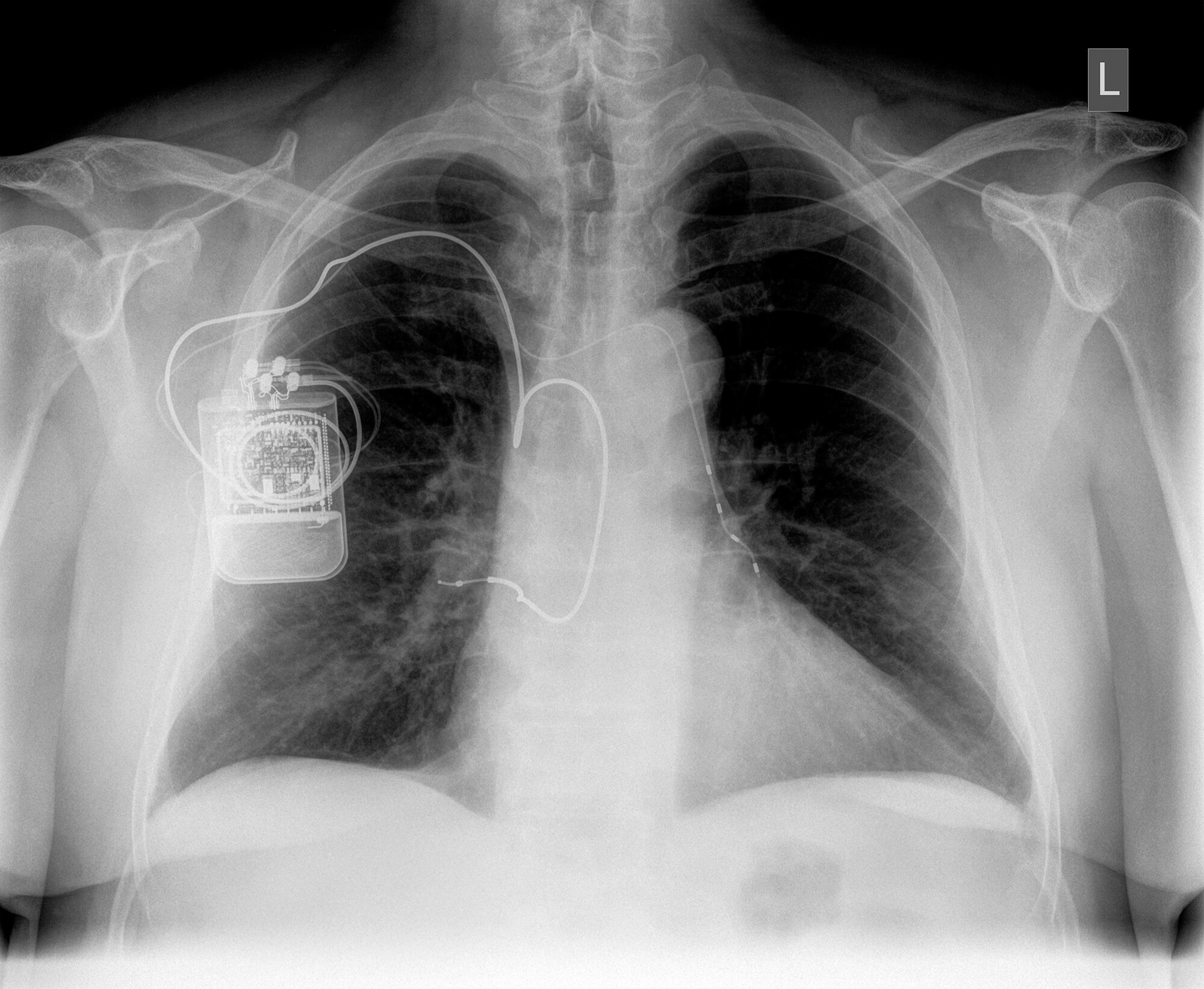 An X-ray shows the implanted device in a patient's chest.