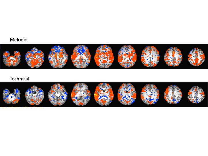 Scans of Mei Rui's brain showing the contrast between technical and melodic music passages.