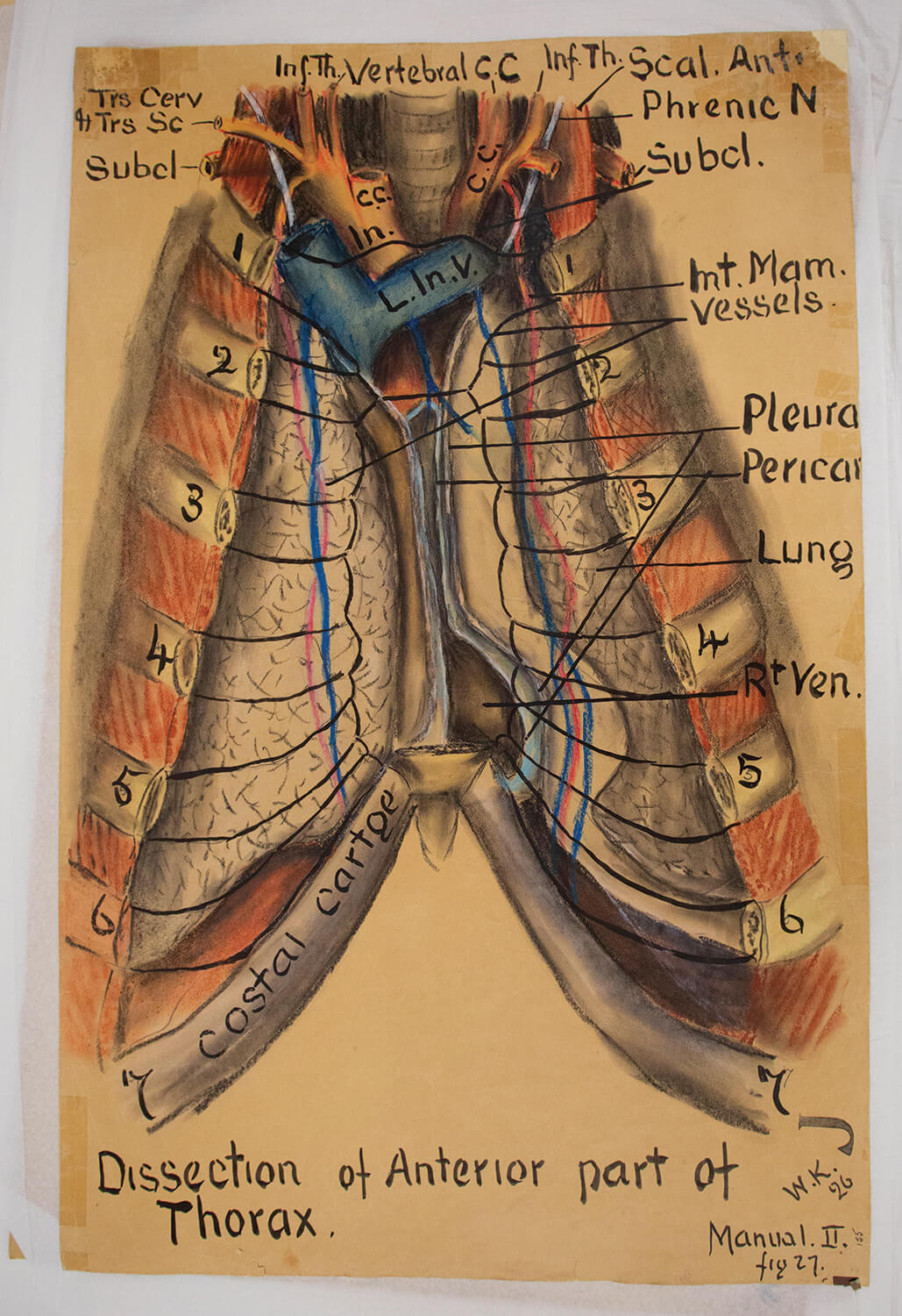 Keiller drew anatomical images from experience in the medical field and observations of the human body.